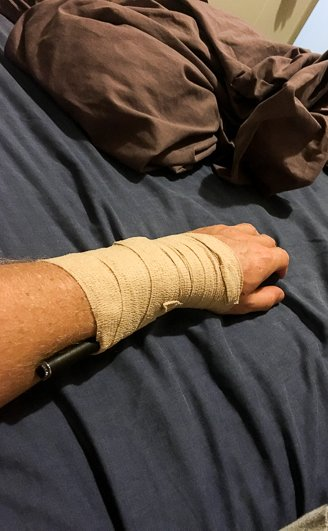 Cook Island Injury
